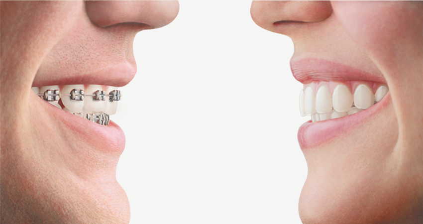 side by side image showing the different appearance of Invisalign and traditional orthodontics